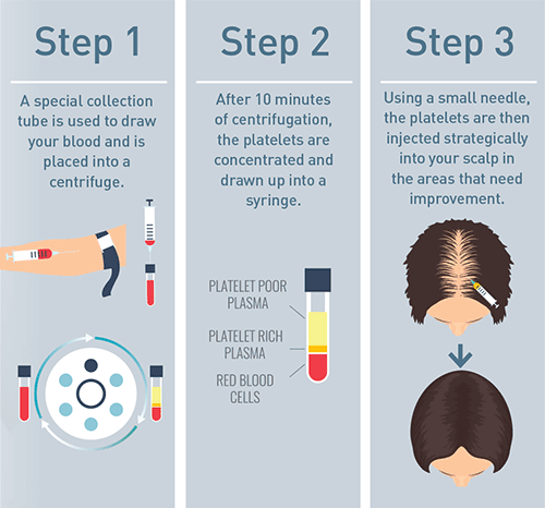 Steps of PRP Hair Therapy Treatment
