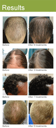 PRP Hair Restoration Los Angeles | David Ghozland