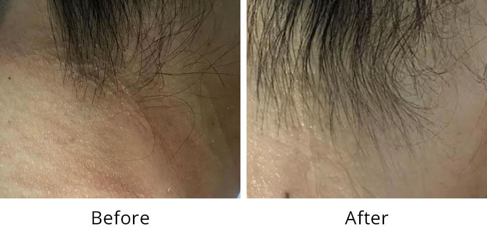 Intimate Lightening Before and After Neck