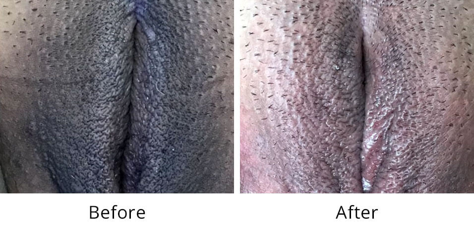 Intimate Lightening Before and After Vaginal Area