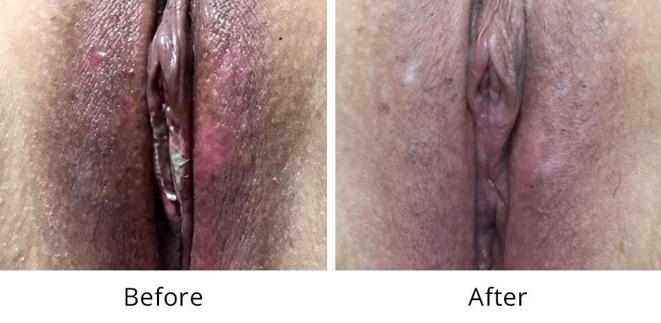 Intimate Lightening Before and After Vaginal