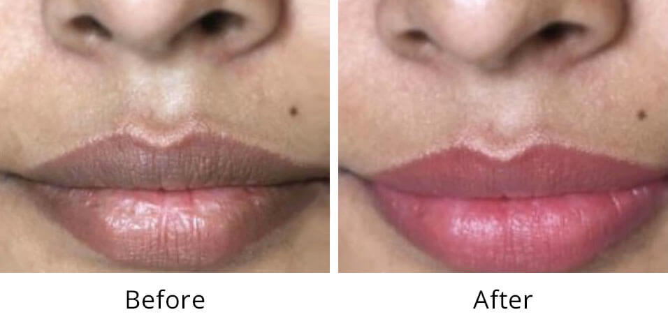Intimate Lightening Before and After Lips