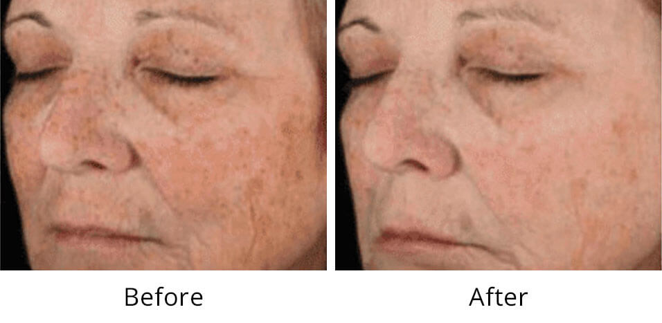 Intimate Lightening Before and After Face