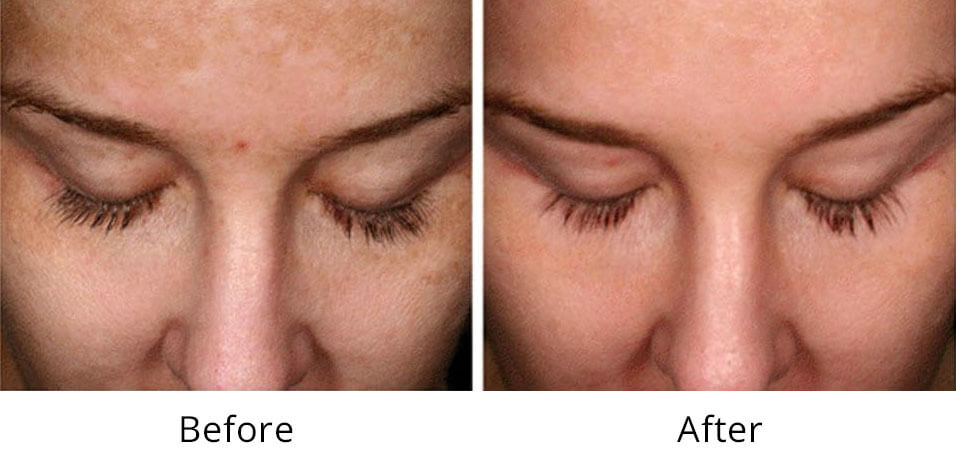 Intimate Lightening Before and After Forehead and Face