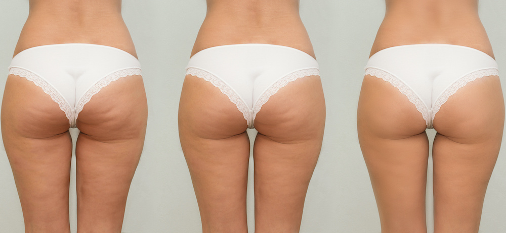 What is the Best Solution for Getting Rid of Cellulite?