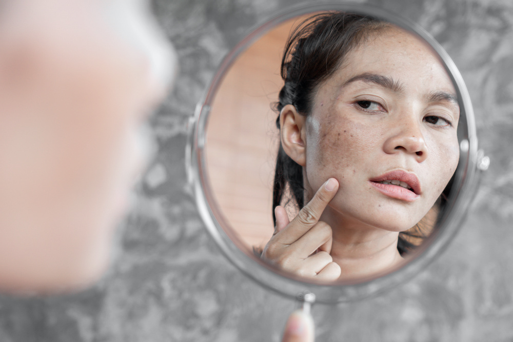 How to Differentiate Between Melasma and Hyperpigmentation?